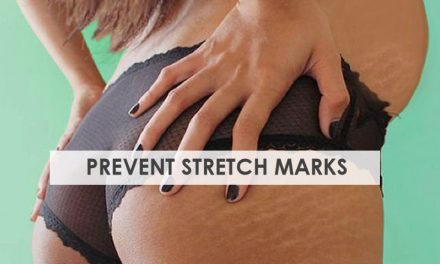 10 Tips for Preventing Stretch Marks during Pregnancy