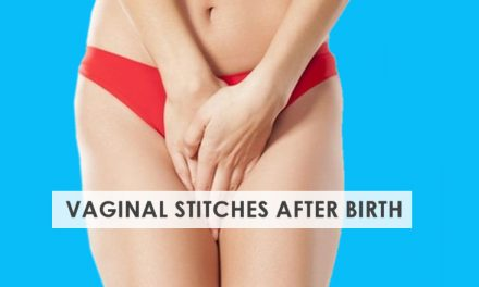 Vaginal Stitches after Birth – Ultimate Care Guide