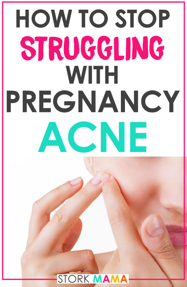 Pregnancy Acne | Are you dealing with terrible acne skin during pregnanacy? Acne can be painful and embarrasing as an adult. Learn 8 ways to cope with it and natural remedies for acne during pregnancy. Stork Mama