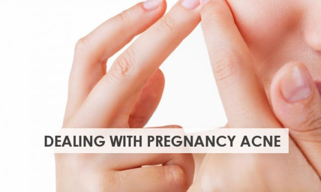 8 Ways to Deal With Your Pregnancy Acne